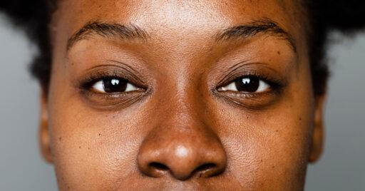 Comprender cómo afecta la hiperpigmentación a la piel negra