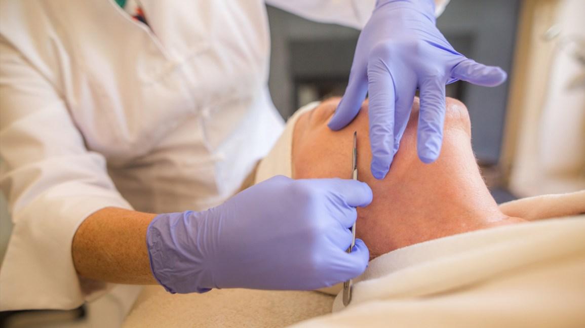 cómo deshacerse de la pelusa de melocotón en la cara, personas en el procedimiento de eliminación de tecnología fizz tech en el consultorio del médico