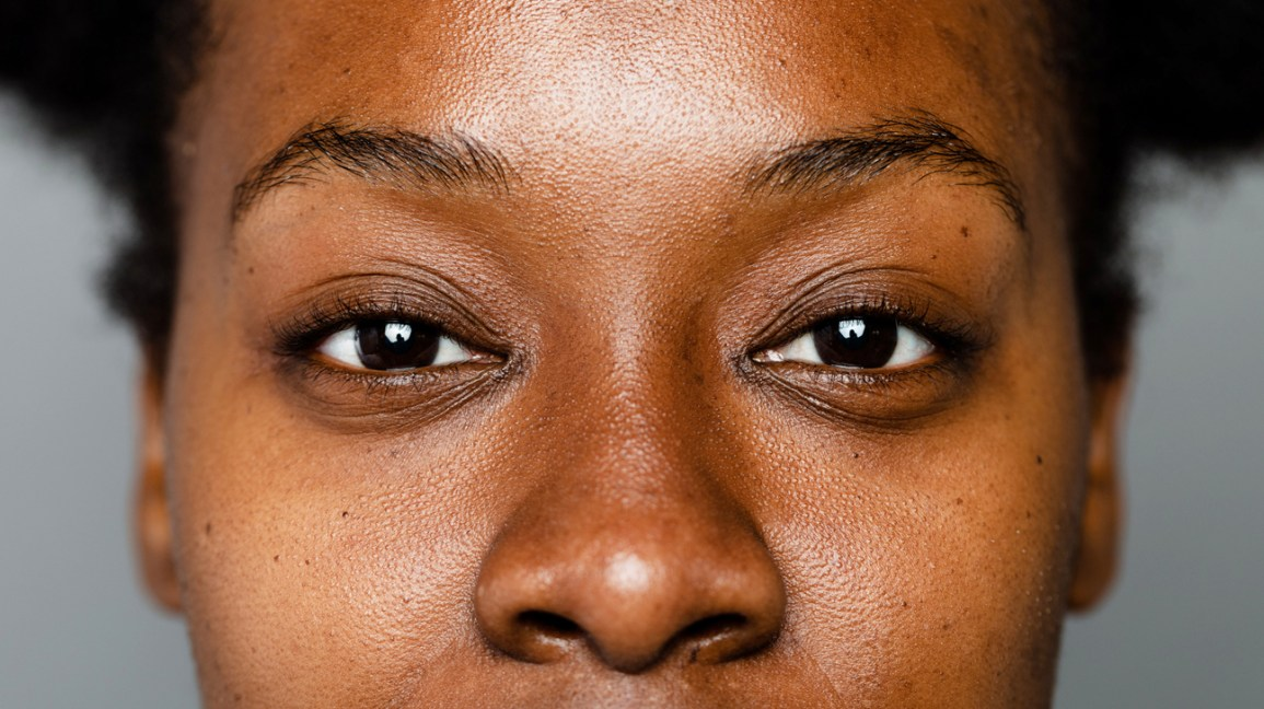 Mujeres negras hiperpigmentadas